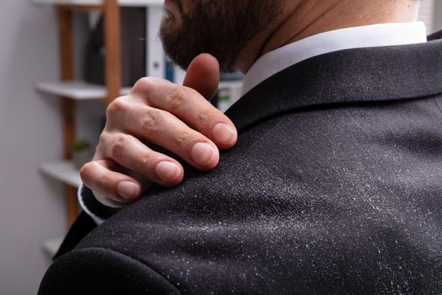 Businessman Cleaning Dandruff Off The Shoulder
