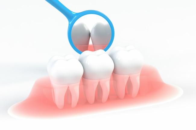 歯科衛生のイメージイラスト