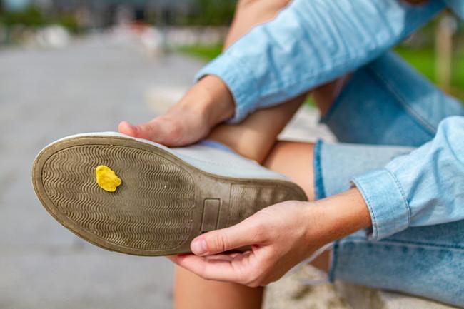 黄色いガムが付着した靴