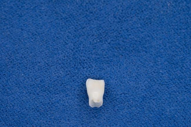 子供の抜けた歯