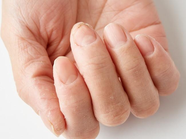 手荒れで指と爪があれている手